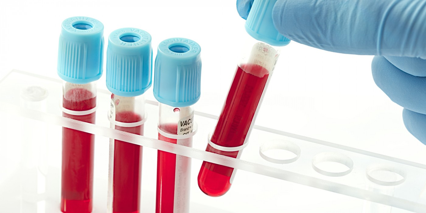 Blood Test Could Prevent Medication Trial and Error for Rheumatoid Arthritis Patients