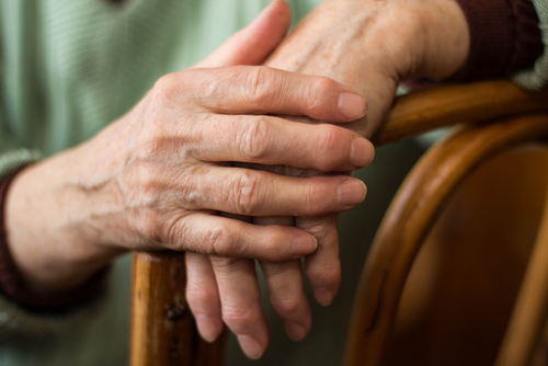 Rheumatoid Arthritis Treatment and Progression Affected by Socioeconomic Status