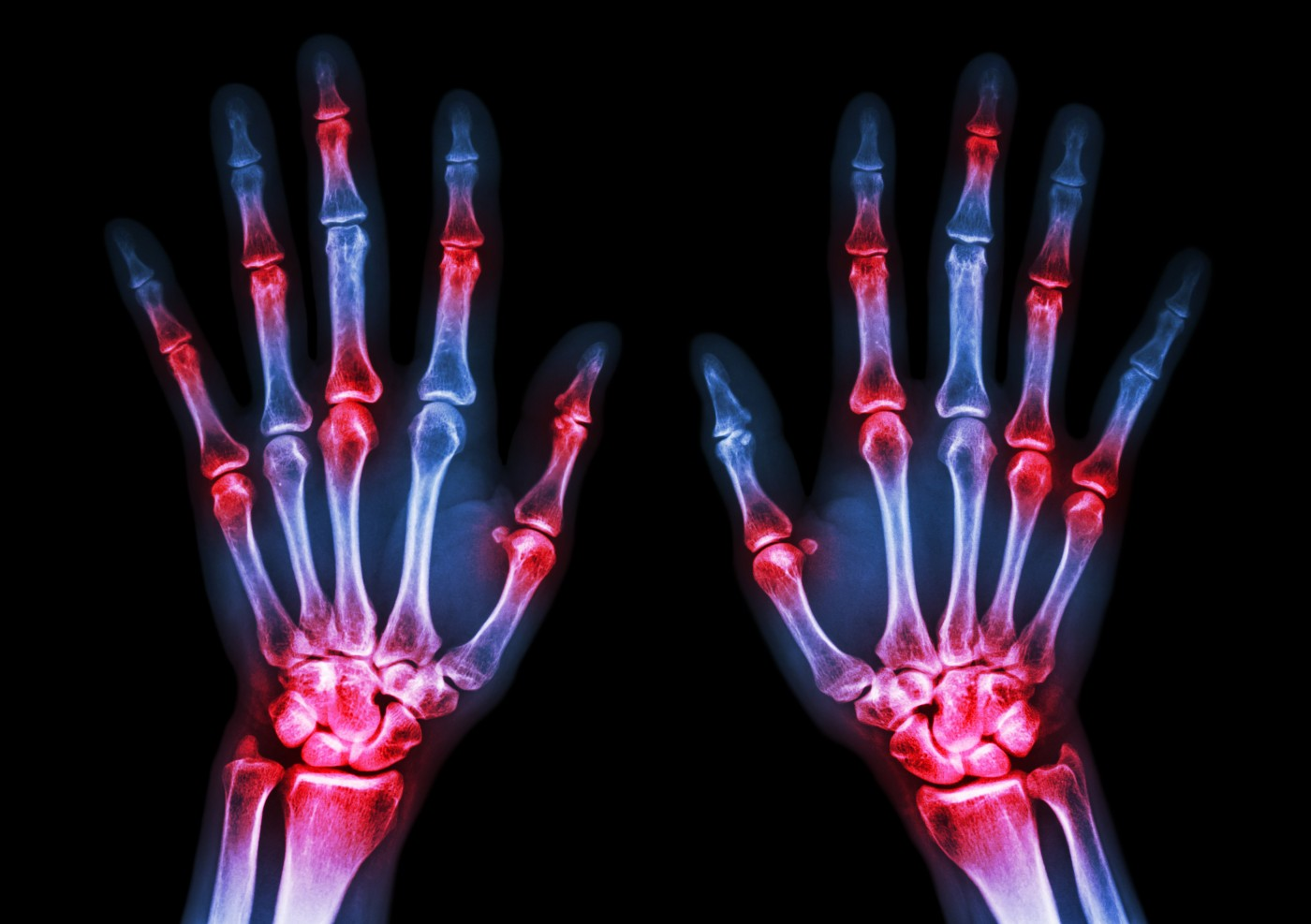 SWITCH-RA Study Tests Rituximab Versus TNF Inhibitor in Patients with Rheumatoid Arthritis