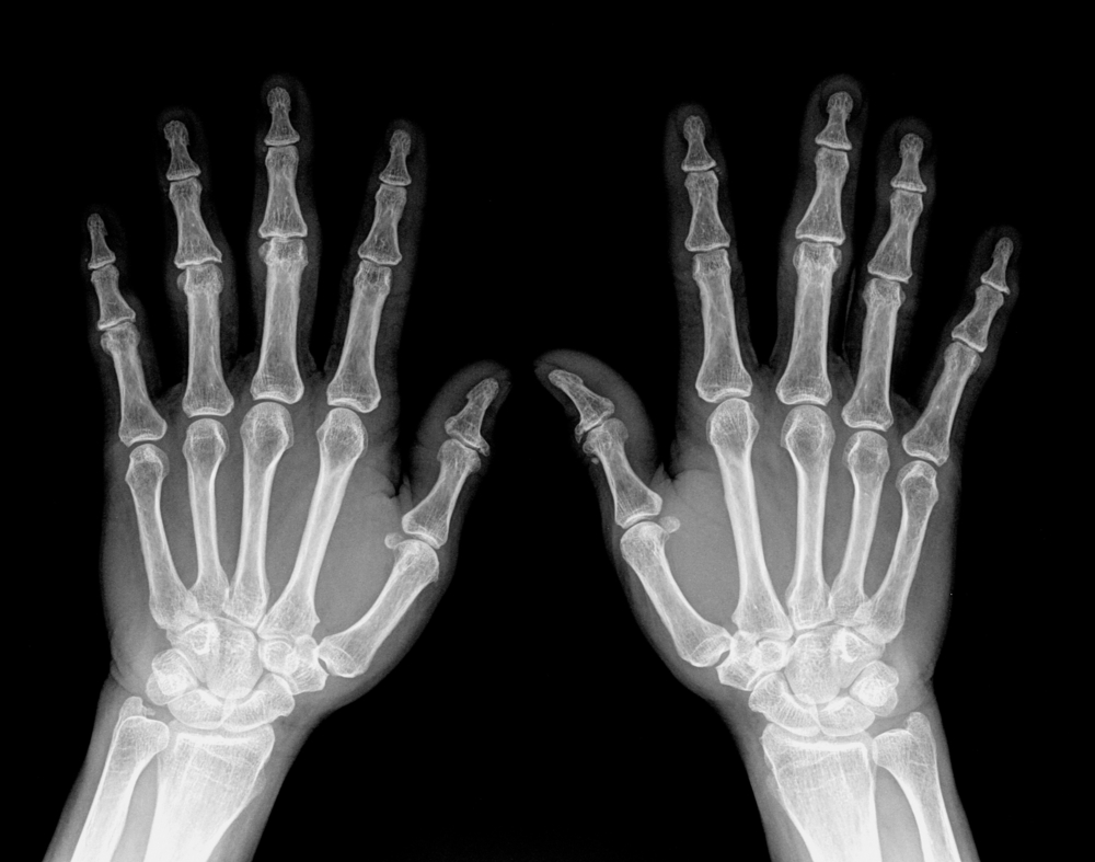 Vascular Calcifications on Hands May Predict Cardiovascular Risk in Rheumatoid Arthritis Patients.