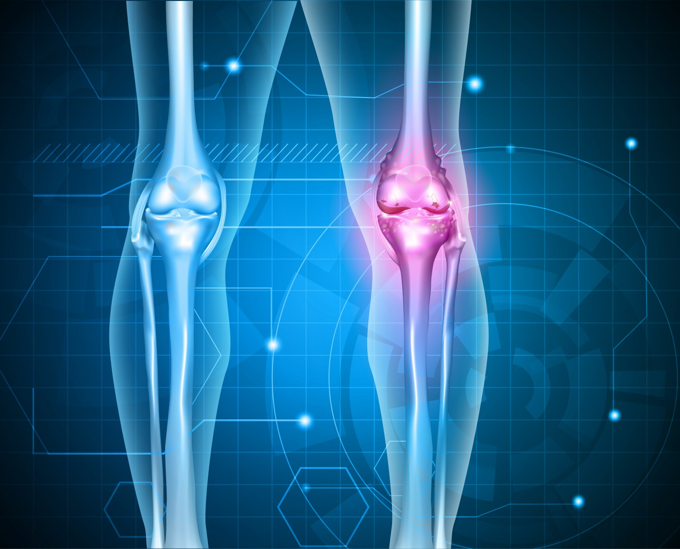 Rheumatoid arthritis may differ by location