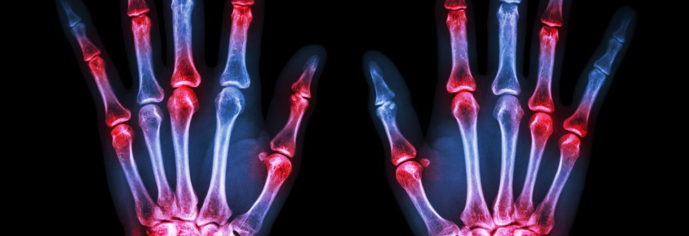Certain Rheumatoid Arthritis Patients Improved Faster with Baricitinib than Humira, Studies Show